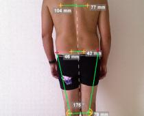 analyse posturale bilan posturologie